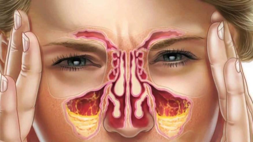 Ιγμορίτιδα