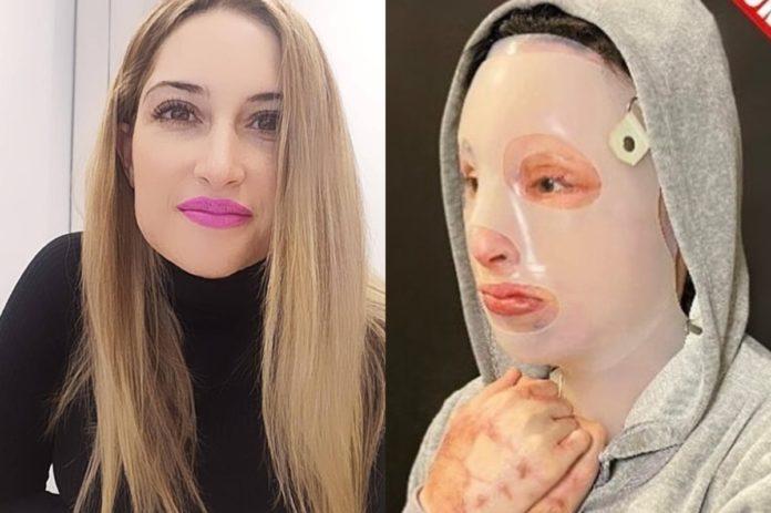 Επίθεση με βιτριόλι: Τα αισχρά μηνύματα στο προφίλ της Ιωάννας και η αντίδρασή της